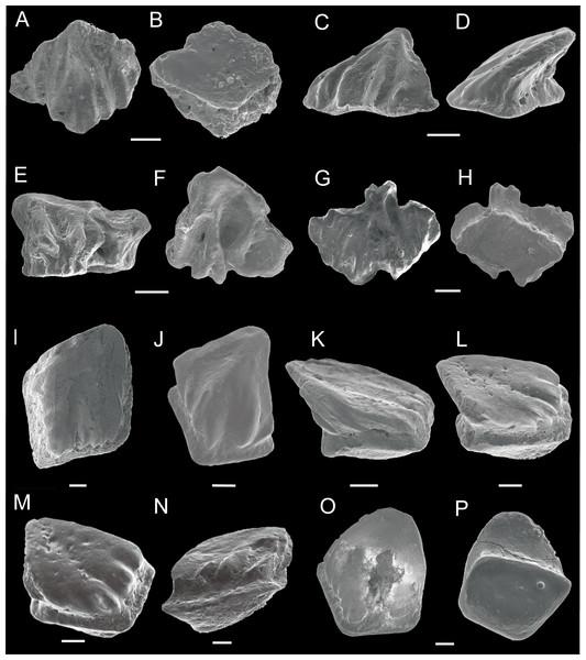SEM photos of Nostolepis qujingensis sp. nov. and Nostolepis digitus sp. nov. scales.