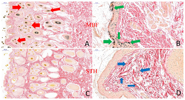 The result of skin tissues Fontana-Masson staining in MBF sheep and STH sheep.