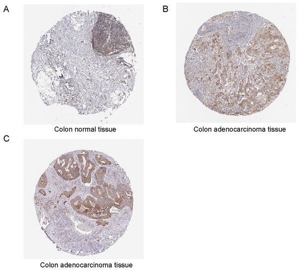 Immunohistochemistry analysis of TYMS and BCL2L1 in colorectal cancer.