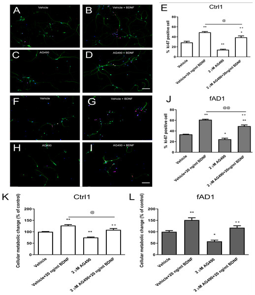 JAK2 inhibitor partially inhibits cell proliferation in the presence of BDNF.