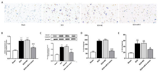 miR-9 mimic reduced apoptosis rate and the production of IL-6 and IL-1β at 48 h after SCII.
