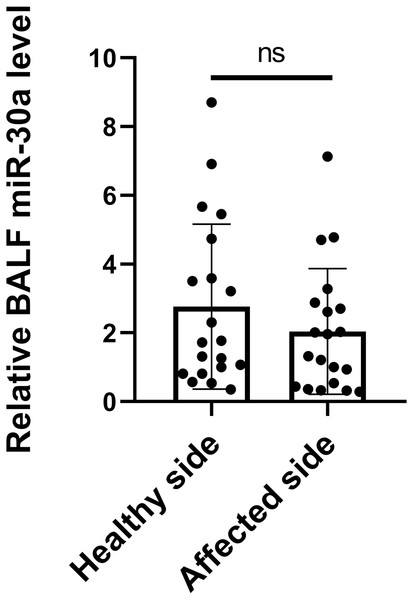 miRNA-30a levels in BALF specimens obtained from the sides with and without lung cancer lesions.