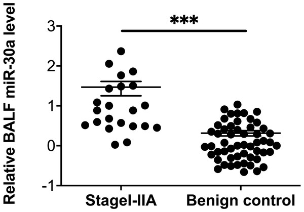 miRNA-30a levels in stages I–IIA lung cancer patients and benign controls.