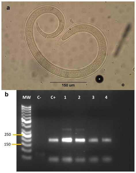 (A) Larva of Trichinella sp. isolated from a Galictis cuja. (B) Gel electrophoresis of PCR products.