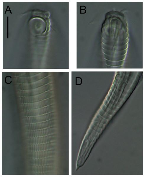 Alaimella aff. cincta Light micrographs of male.