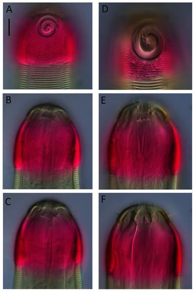 Desmodora aff. pilosa Light micrographs.