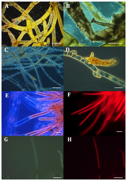 Micrographs of four filamentous taxa in samples from mats collected off Hanga Roa, Rapa Nui at mesophotic depths. A–E and G were photographed using phase-contrast and F and H using epifluorescence techniques.