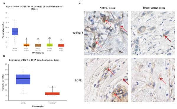 The expression of TGFβR3 and EGFR in breast cancer tissues.