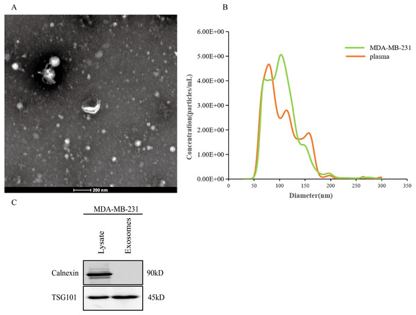 Extraction and identification of exosomes.