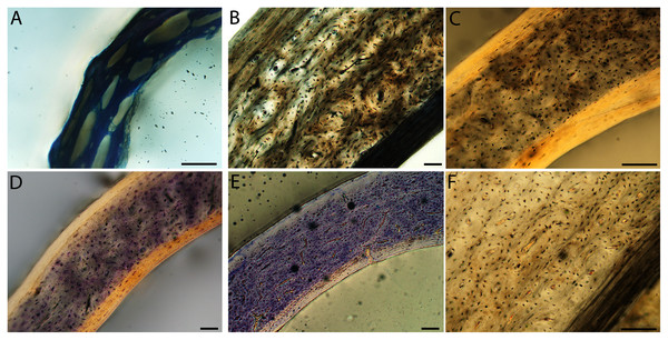 Close-up photographs of microanatomical details in the femora of semi-altricial 1 birds.