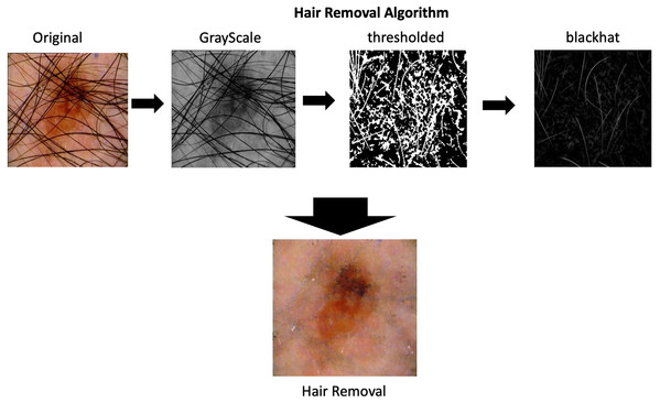 Hair removal process.