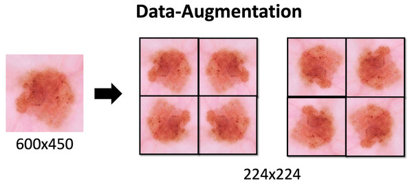 Data-Augmentation.