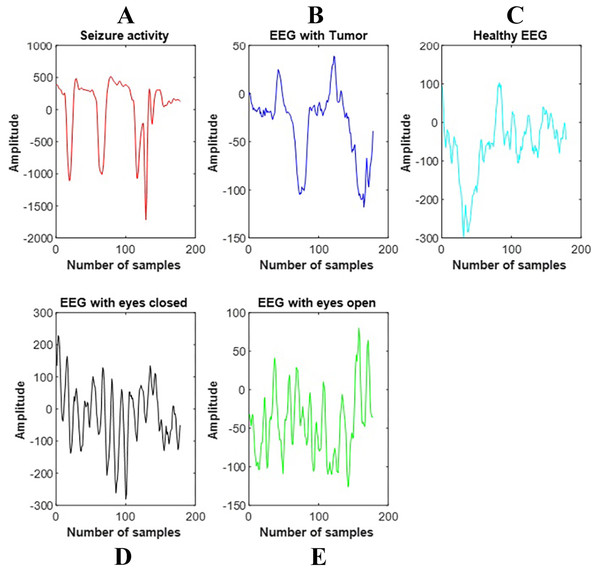 The signals of each band composing the EEG signal.