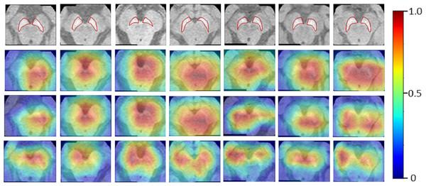 Results for the Neuromelanin MRI-PD dataset.